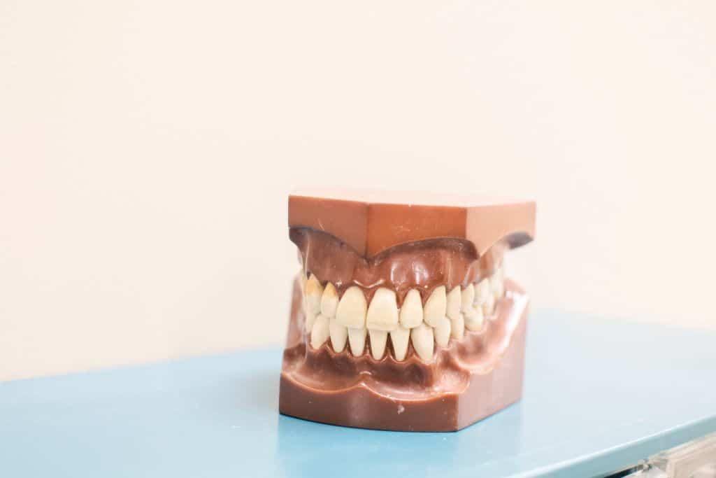 Faccette dentali3